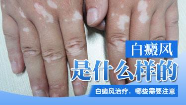 白癜风病的有效治疗方法?